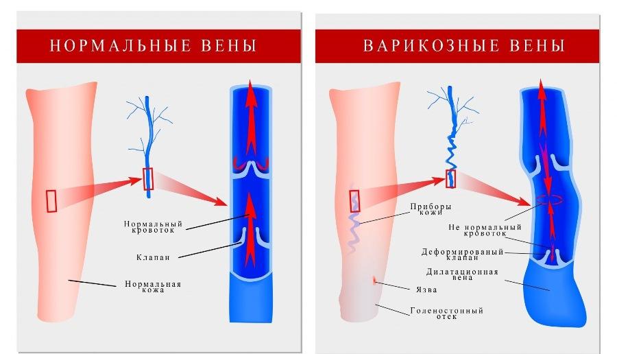 Cum să ușureze durerea varicelor